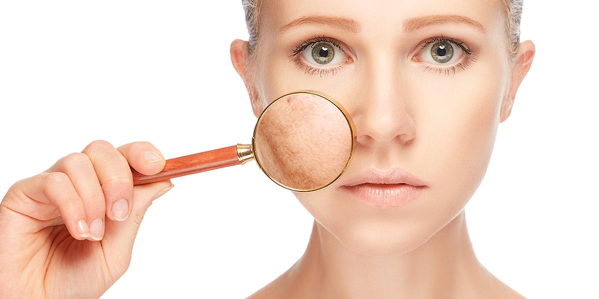 Skin Pigmentation Treatment Adelaide